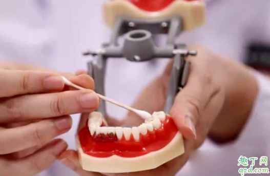 宝宝出牙会有低烧吗 小孩先长上牙还是下牙4