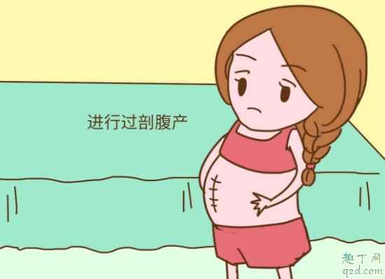 剖宫产横剖竖剖哪个好 第二次剖腹产是在原伤口上剖吗2
